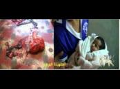 """جريمة مقتل الشهيدة """" فيروز اليافعي """" على يد قوات الاحتلال اليمني في  """" 22 أكتوبر 2012م """" شهادات وصور """""""